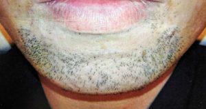 メンズTBCヒゲ脱毛体験のため2日間伸ばしたヒゲ